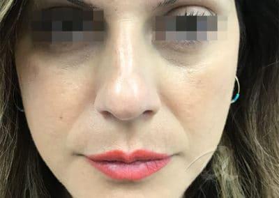 Nose Filler Before & After Photos a1