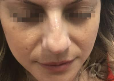Nose Filler Before & After Photo b1