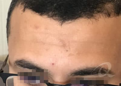 Scar Removal Before Picture aa1