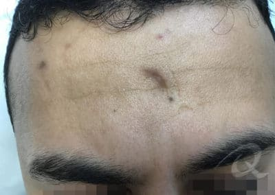 Scar Removal Before Photo bb1