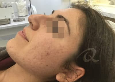Acne Before & After Picture 55-a2