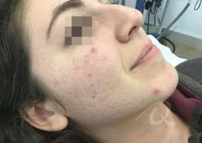 Acne Before & After Photo 55-a2