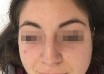 Acne Before & After Picture 55-a3