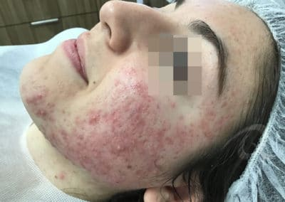 Acne Before & After Picture 55-b1