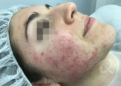 Acne Before & After Photo 55-b1