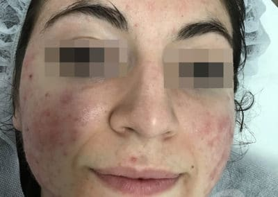 Acne Before & After Photo 55-b3