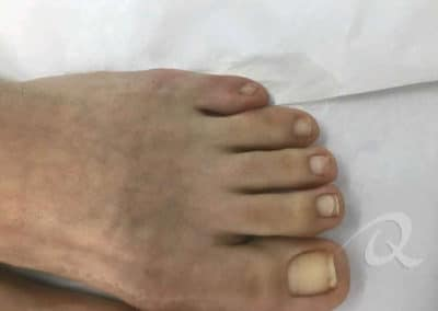 Fungal Nail Treatment Before & After Photo a4