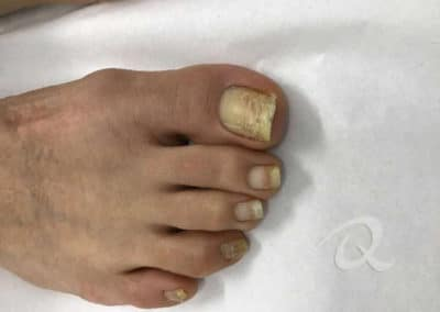 Fungal Nail Treatment Before & After Photo b5