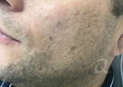 Mole Removal Before & After Photo a1