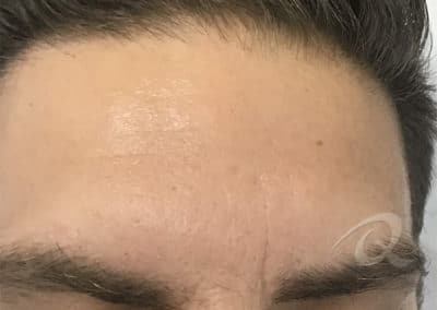 Mole Removal Before & After Photo a2