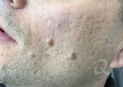 Mole Removal Before & After Photo b1