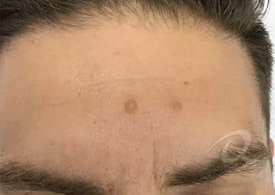 Mole Removal Before & After Picture b2