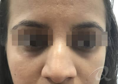 Dark Circle Eyes Before & After Picture b1