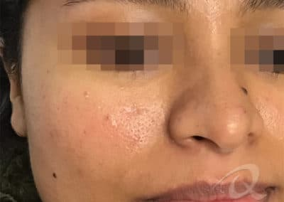 Mole Removal Before & After Photo a4