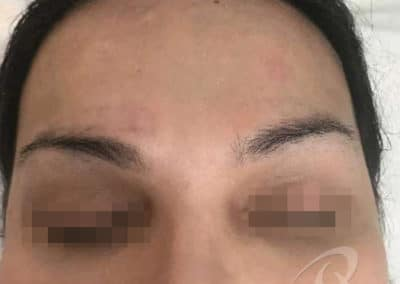 Permanent Makeup Removal Before and After Photos a1