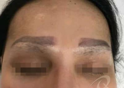 Permanent Makeup Removal Before and After Photos b1