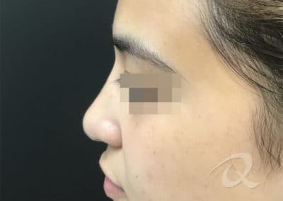 Nose Fillers Before & After Picture a1