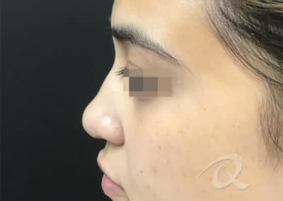 Nose Fillers Before & After Photo b1