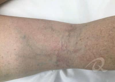 Vein Removal Before & After Photo a1