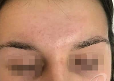 Acne Before & After Picture 56a