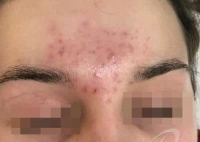 Acne Before & After Photo 56