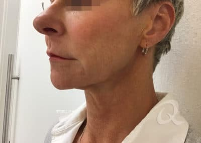Skin tightening before after photo a1