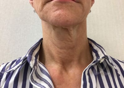 Skin tightening before after picture b2