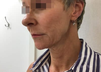 Skin tightening before after picture b1