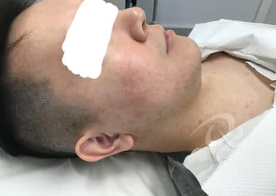 Age spot removal after photo a4