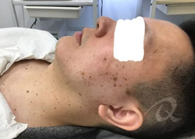 Age spot removal before picture b3