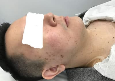 Age spot removal before photo b4