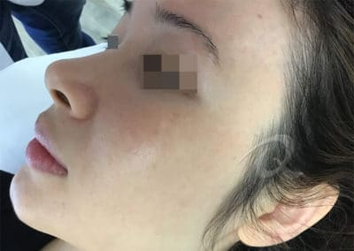 Melasma After Picture a1