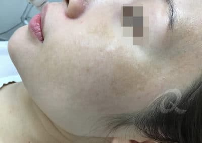 Melasma Before Picture b1