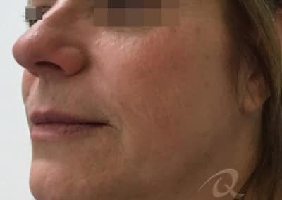 Skin tightening before after photo a3