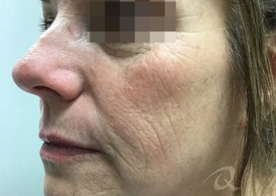 Skin tightening before after photo b3