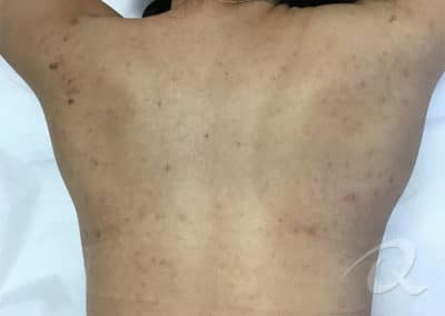 Acne after photo a6