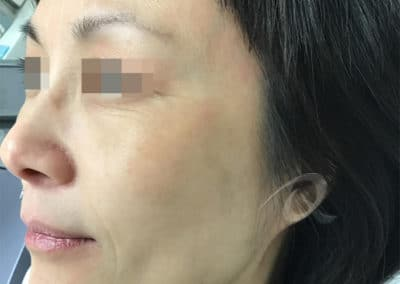 Age spot removal after picture a5