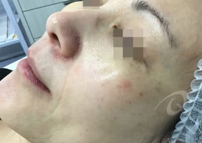 Age spot removal before photo b5