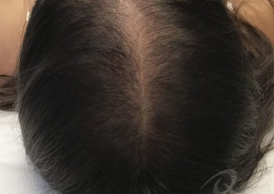 Hair Loss Before After Photo a3