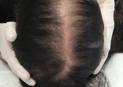 Hair Loss Before After Photo b3