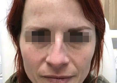 Pigmentation Treatment Before After Photos a1