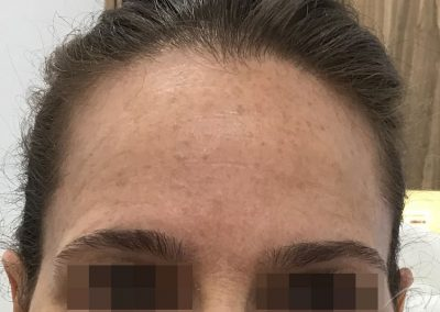 RF Skin Tightening Before & After Photos a1