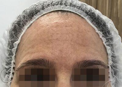 RF Skin Tightening Before & After Pictures b1