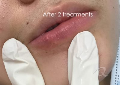 Scar Removal After Picture a12