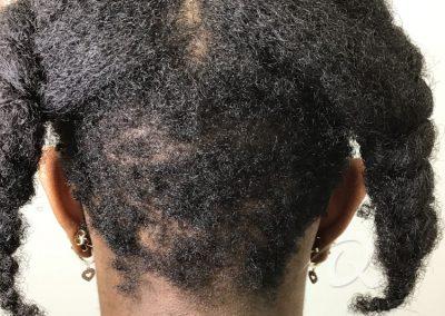 Hair Loss Before After Photo b1