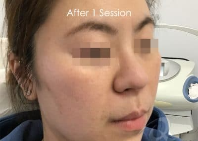Skin tightening before after photo aa1