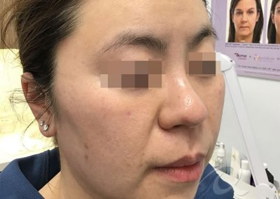 Skin tightening before after photo bb1