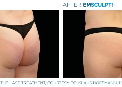 EMSCULPT NEO buttocks