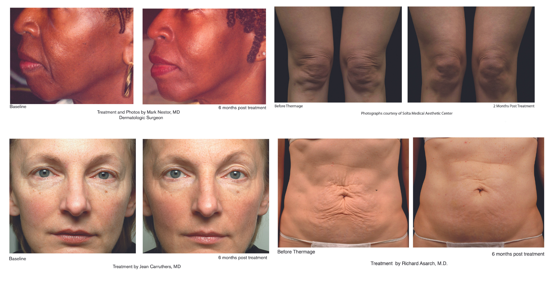 thermage before and after photos